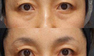 目の下のクマ治療
