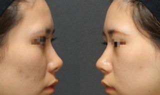 鼻先に注目‼️ 耳介軟骨移植‼️