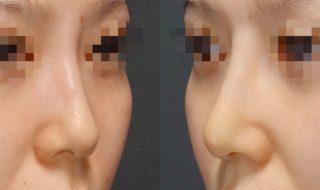 鼻:ヒアルロン酸から外科治療へ
