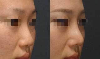 鼻の複合手術