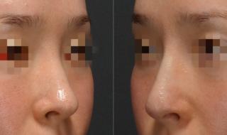 鼻のヒアルロン酸注入