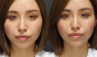 顎ヒアルロン酸✖️顎ボトックスで小顔効果✨