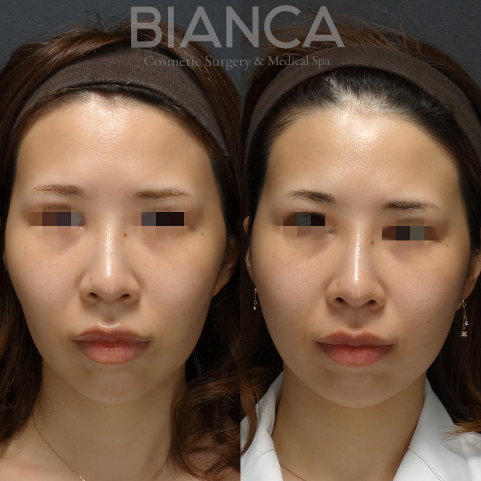 頬コケにはヒアルロン酸が有効です。
