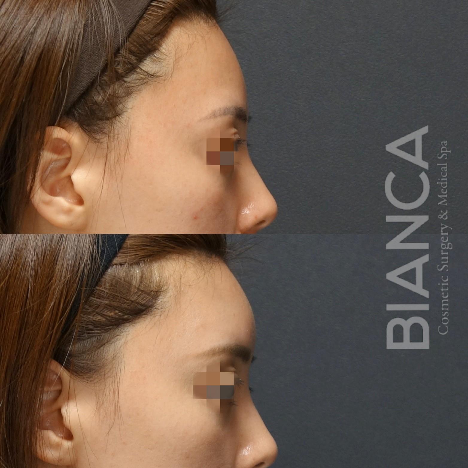 額と鼻の角度☺額ヒアルロン酸