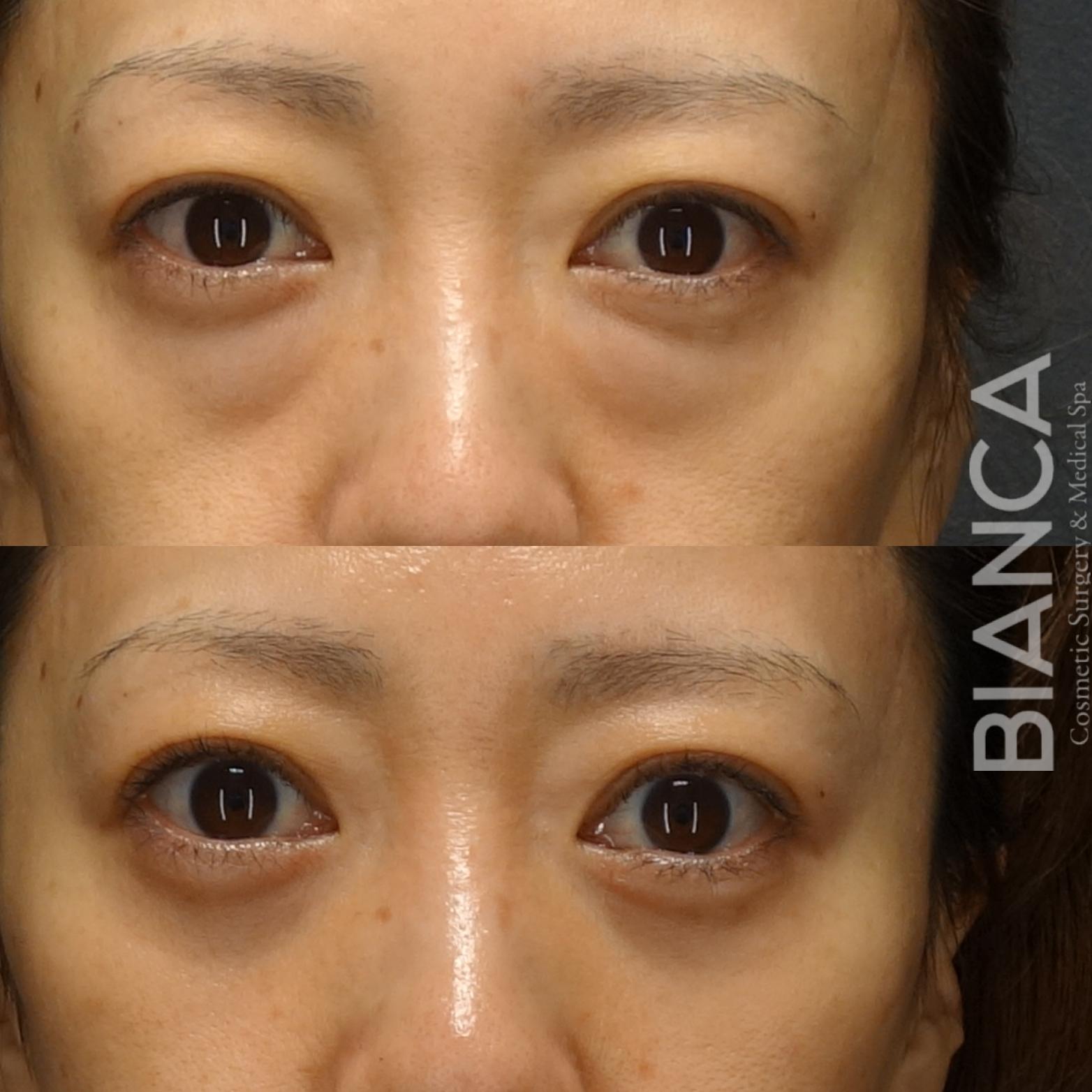目の下の膨らみ、眼窩脂肪が原因かも☺️