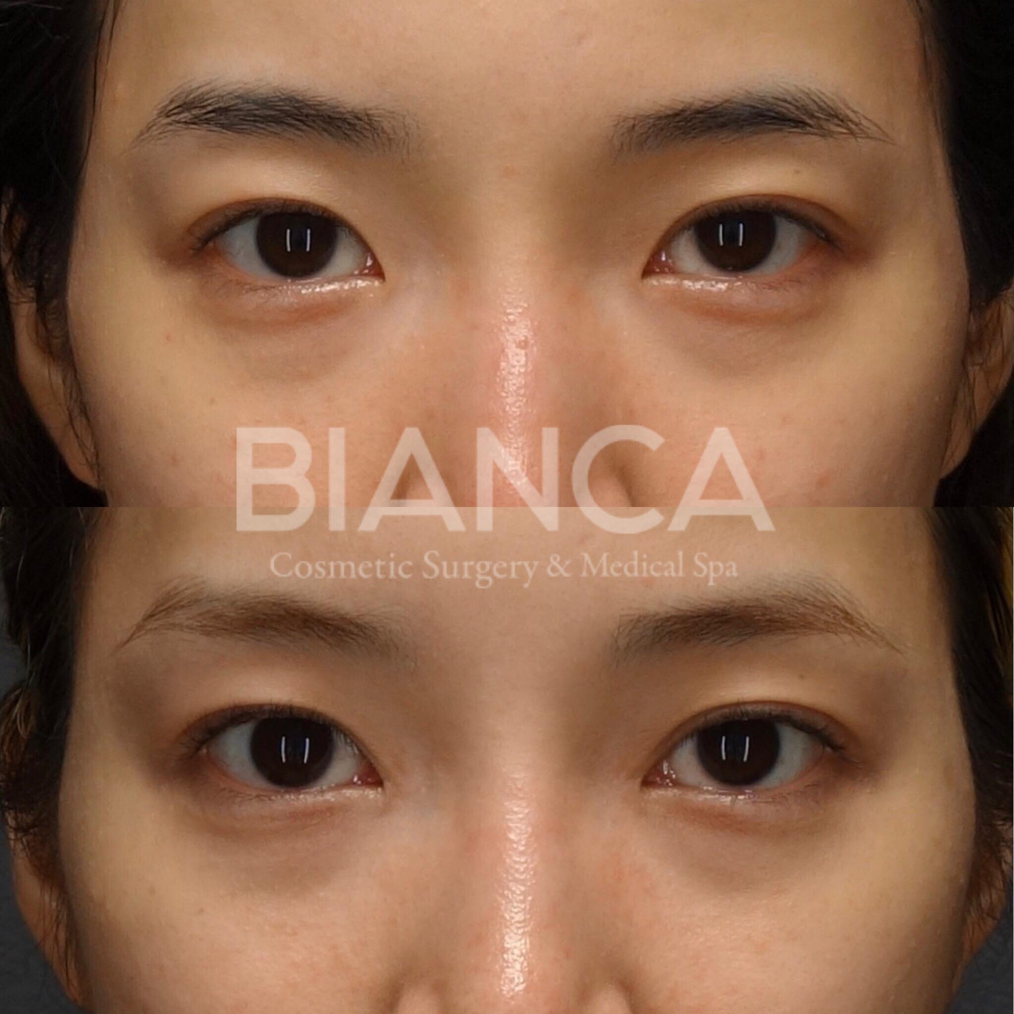 目と鼻のバランス
