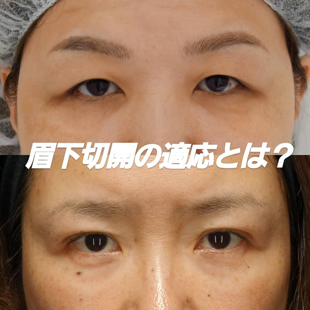 眉下切開は年齢に関係なく