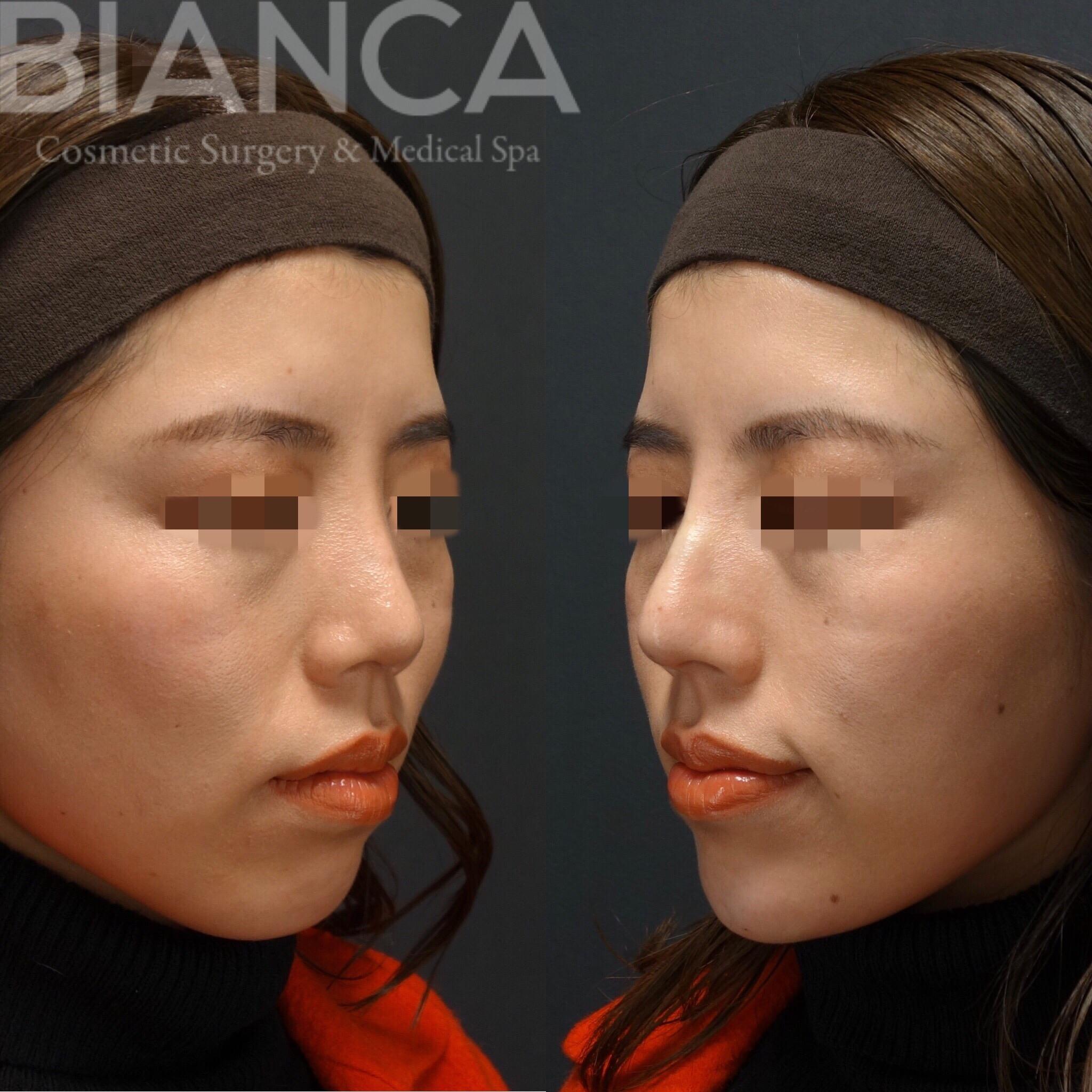 鼻と顎のヒアルロン酸