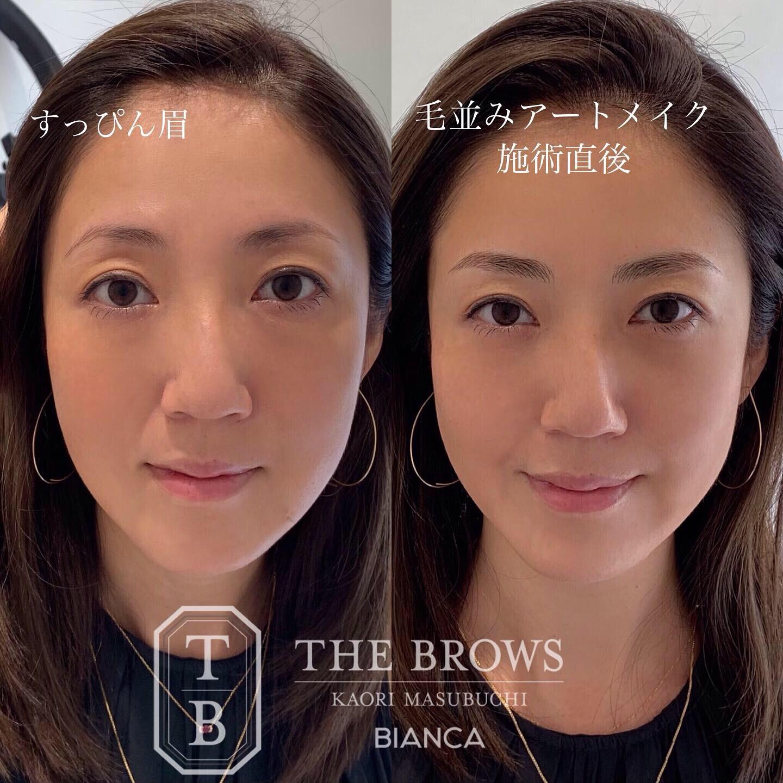 アートメイクによるお顔全体のイメージ変化