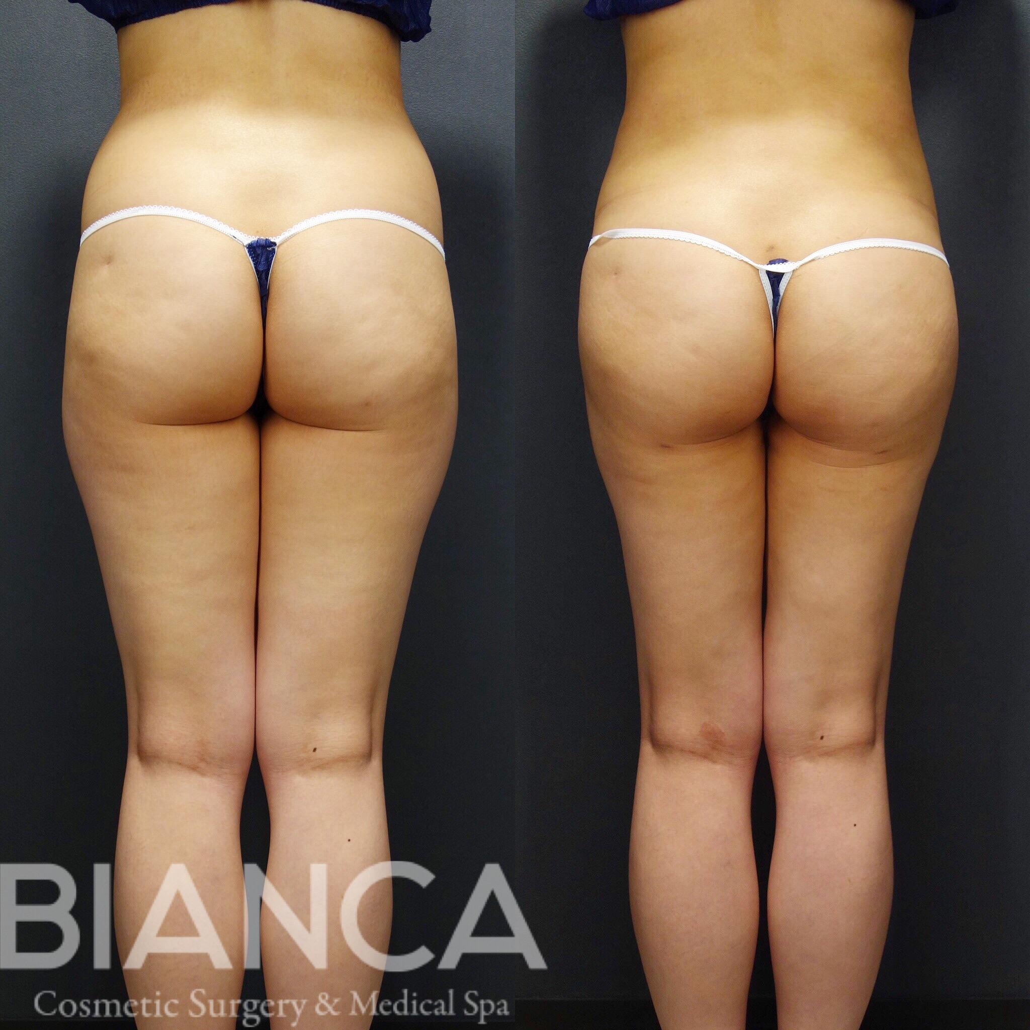 大腿全周〜腰周り 脂肪吸引